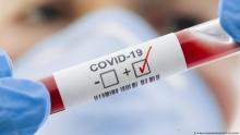 Почти 2 млрд человек находятся в зоне риска заражения COVID-19, - ВОЗ