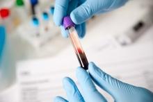 Сколько в Таджикистане стоит сдать самые обычные анализы крови, мочи и на гормоны?